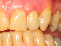 After - Upper Left Lateral Incisor. Old PFM Crown Replaced With E-Max Crown. Metal Post With Opaquer Applied.