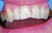 Upper right full ceramic crown fitted in Ammangirrbach Zirconia.